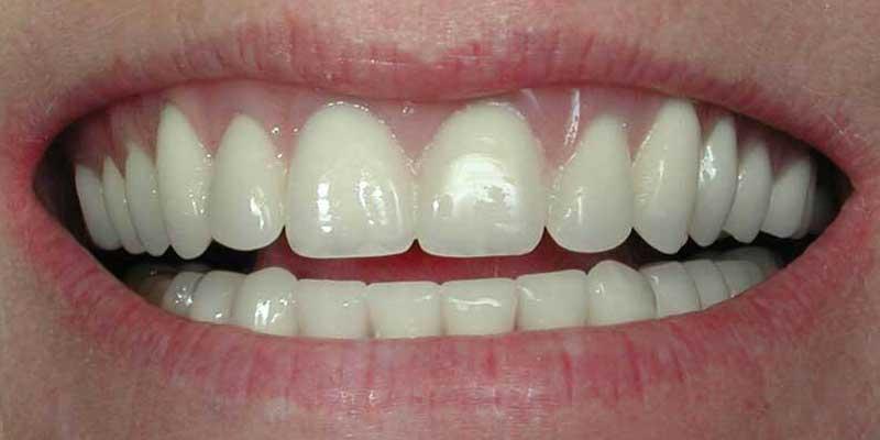 Ergebnis Zahnbehandlung nacher