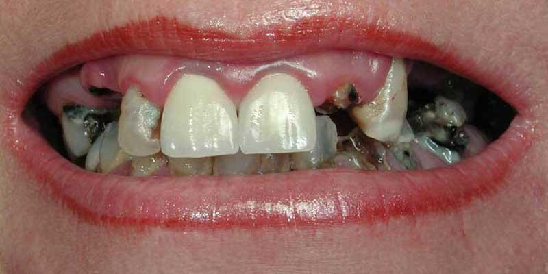 Vor einer Zahnbehandlung