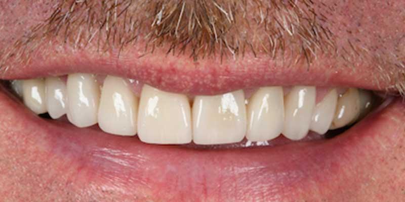 Nachher Bild einer Zahnbehandlung in Linz