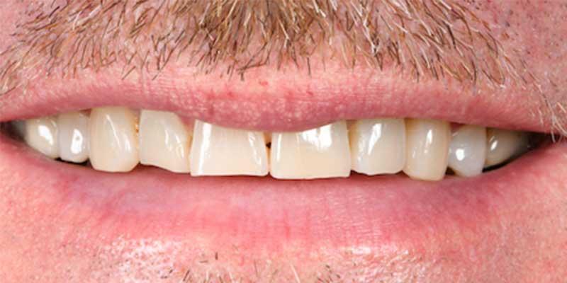 Vorher Bild einer Zahnbehandlung in Linz