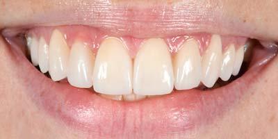 Nachher Bild einer Behandlung durch Dr Reek