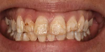 Vorher Bild einer Behandlung durch Dr Reek