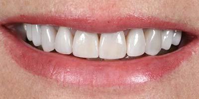 Sehr gutes Ergebnis einer Zahnbehandlung in Linz